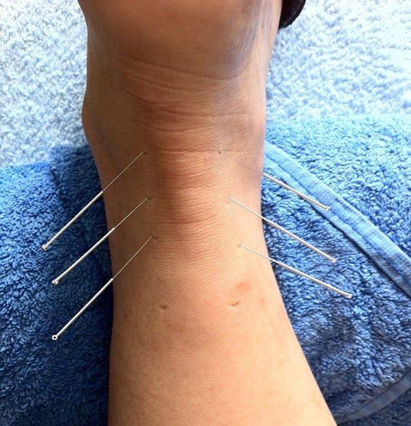 hvordan virker akupunktur